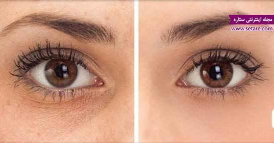 درمان سریع گودی و سیاهی زیر چشم