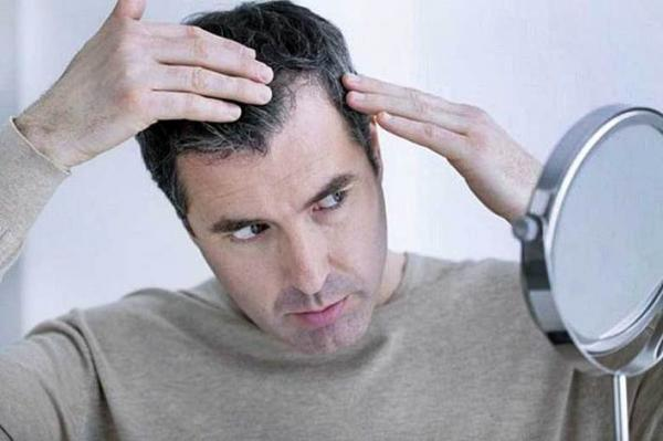 نسخه طبیعت برای ریزش و سفیدی مو